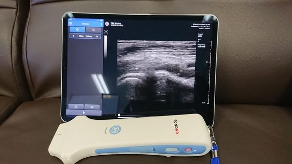 盛岡市の整骨院さんでモバイルエコー:SONON300Lをデモさせて頂きました。