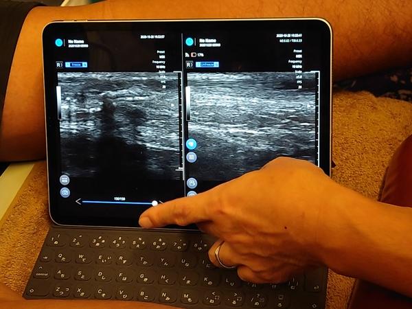 都内の接骨院さんで超音波画像診断装置:SONON300Lをデモさせて頂きました!